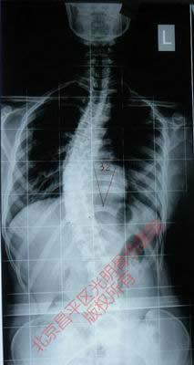 青少年脊柱侧弯症整脊分型
